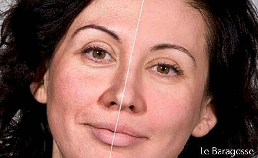 Meet the cream? Blur? that promises to reduce wrinkles by 40 seconds