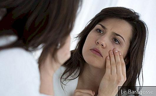 Learn a simple way to lighten dark circles at home
