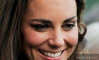 Plastic to have Kate Middleton's nose turns fever among women
