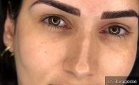 Micropigmentation: Ask questions about this beauty procedure